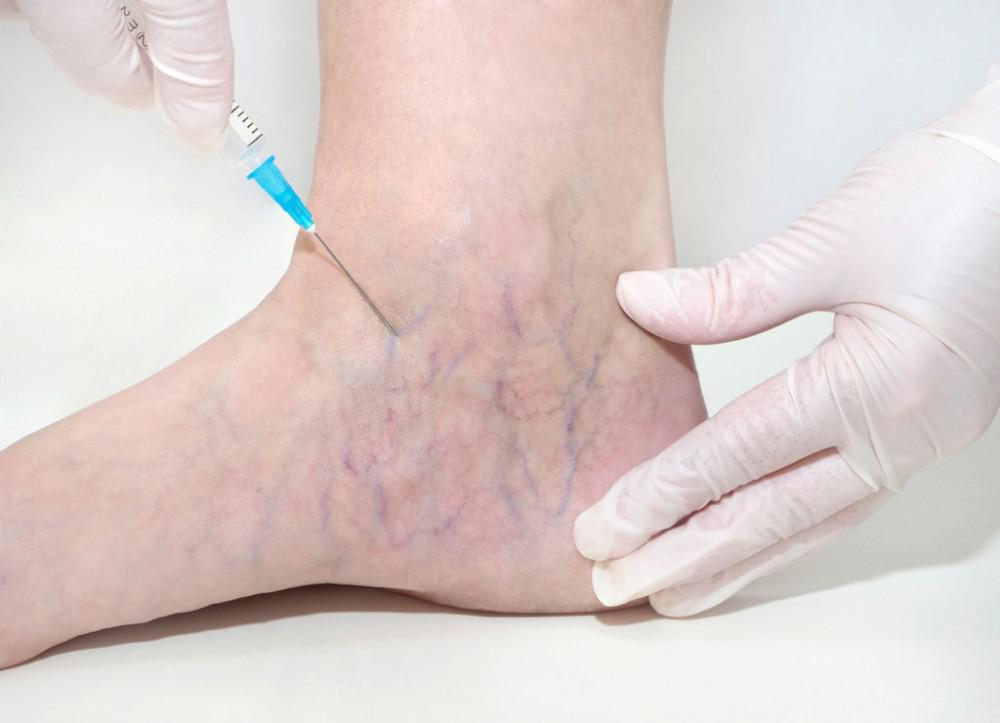 veins treatment